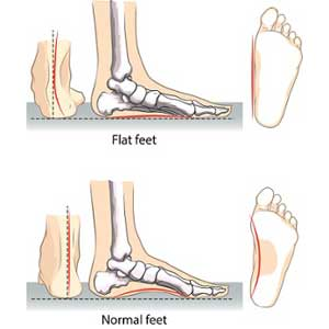 Causes-of-Flat-Feet