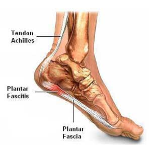 Plantar Fasciitis Night Splints Benefits