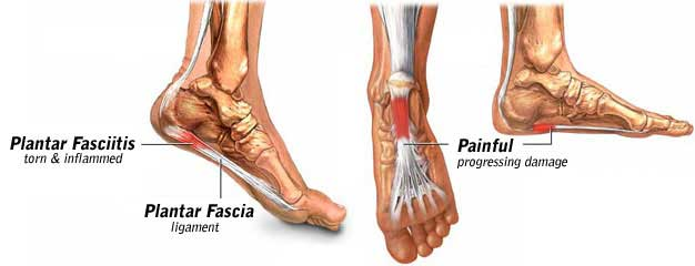 Plantar Fasciitis and Long Distance Hiking
