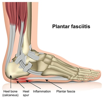 All You Need To Know About Plantar Fasciitis