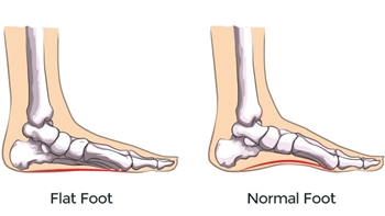All You Need to Know About Flat Feet