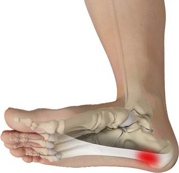 FAQ about Plantar Fasciitis