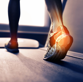 How to Relieve Symptoms of Plantar Fasciitis
