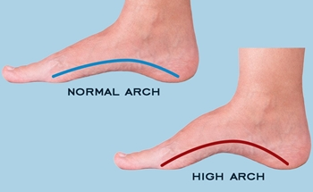 What Is a High Arch
