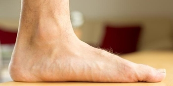 What is Considered Flat Feet